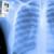 Radiografia domiciliare al torace