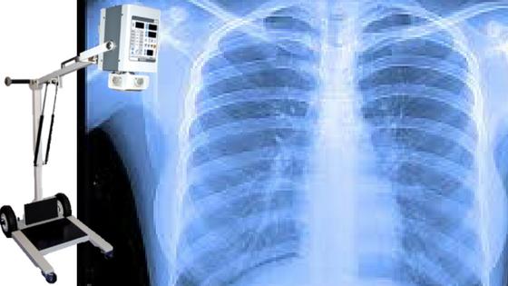Radiografia al torace a domicilio