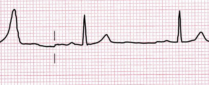 ECG a domicilio: l'elettrocardiogramma a casa tua