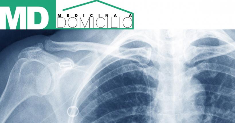 Cosa è la radiografia emicostato?